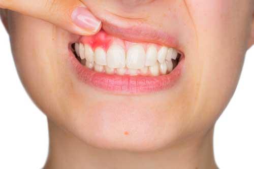 4. Parodontologie