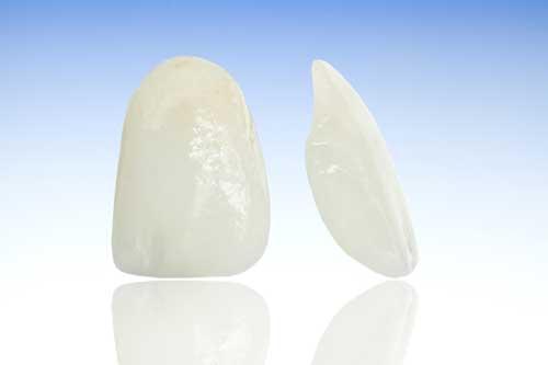 5. Ästhetische Zahnheilkunde