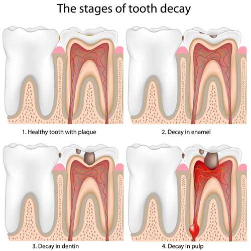 6. Oralchirurgie