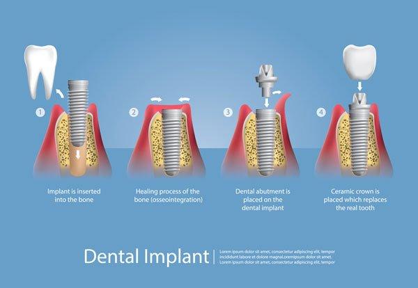 1. Implantation, 2. Einheilung, 3. Freilegung und Verbindung mit Abutment, 4. Zahnersatz (Suprakonstruktion) [©pongpongching, fotolia.com]