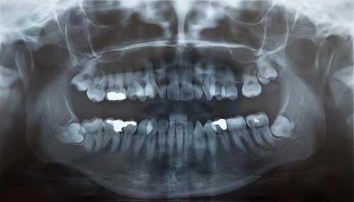 Panoramaröntgenbild: Weisheitszähne des Unterkiefers sind verlagert. [©StockFotosArt, fotolia.com]