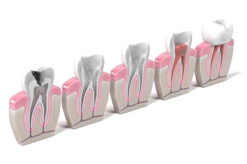 Von links nach rechts: Kariöser Zahn, mechanische Reinigung und Spülung der Wurzelkanäle, Füllung mit Guttapercha, Überkronung des Zahns. [©3drenderings, fotolia.com]