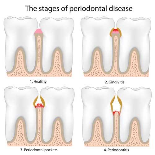 Stadien der Parodontitis: 1. Gesund, 2. Zahnfleischentzündung, 3. Tiefe Zahnfleischtaschen 4. Knochen ist angegriffen
