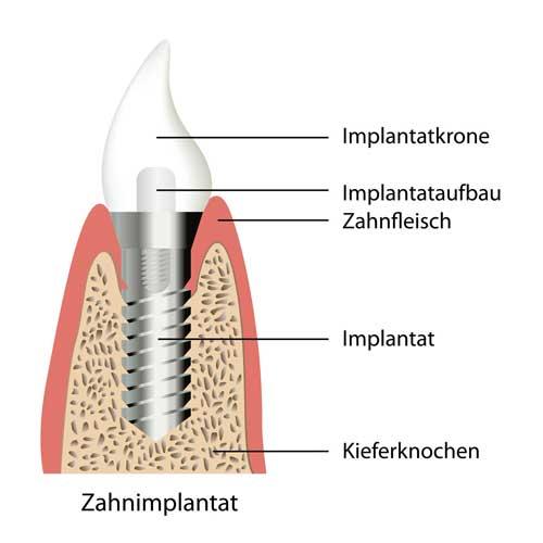 Implantatgetragener Zahnersatz (Einzelzahn) [©Bilderzwerg,fotolia.com]