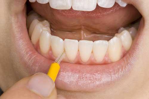 Interdentalbürsten reinigen sehr gut die Zahnzwischenräume. [©Christoph Hähnel, fotolia.com]